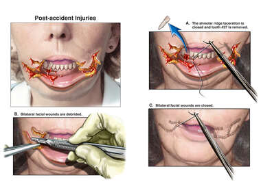 Severe Dogbite Injuries with Surgical Reconstruction of the Lower Lip