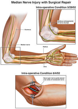 Median Nerve Injury with Surgical Repair