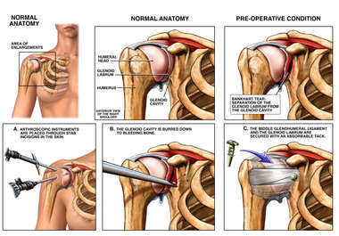 Right Shoulder Injury with Arthroscopic Repairs
