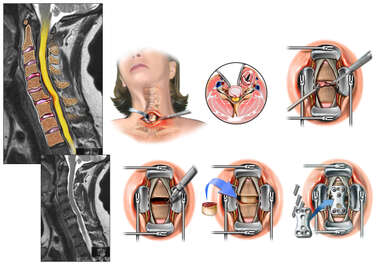 Cervical Spine Injuries with Surgical Discectomy and Fusion