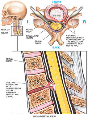 Cervical Disc Herniation