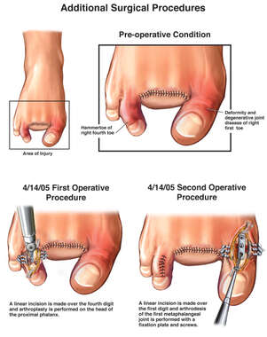 Additional Left Foot and Toe Surgical Procedures