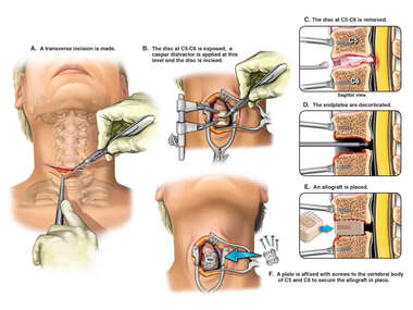 C5-C6 Anterior Discectomy and Fusion