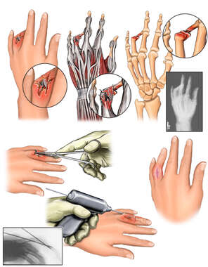 Left Ring Finger Injuries with Surgical Repairs