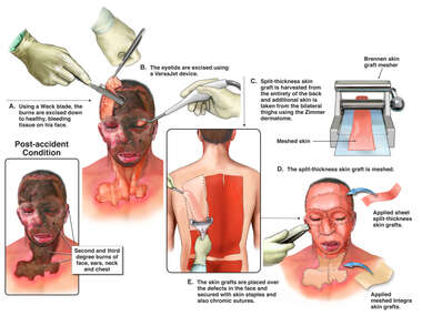 Debridement and Skin Grafting of Face