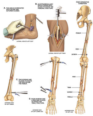 Surgical Fixation of Post-accident Ankle, Leg and Thigh Fractures