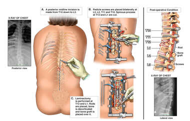 Surgical Fixation of Unstable Spine Fracture