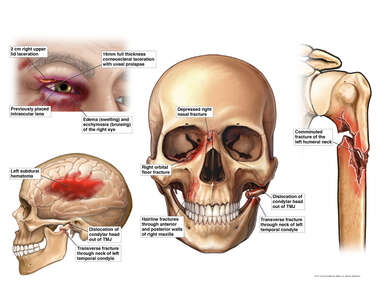 Traumatic Injuries to Eye, Skull, Brain and Arm.