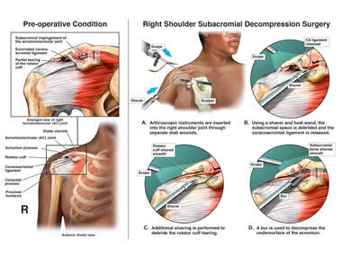 Right Shoulder Injuries with Surgical Treatment