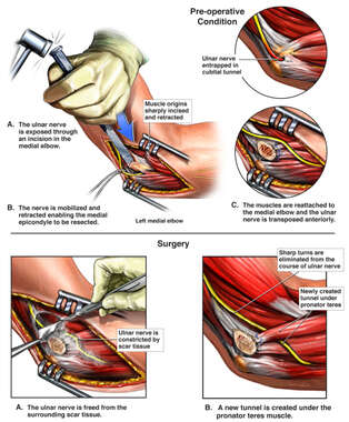 Left Elbow Injuries with Attempts at Surgical Repair