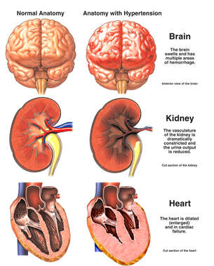 Organ Damage Due to Extreme Hypertension (High Blood Pressure)
