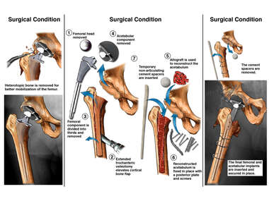 Multiple Surgeries to Repair the Right Hip
