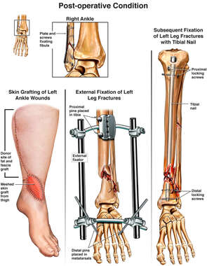 Skin Grafting of Left Ankle Wounds  and External Fixation of Fractures