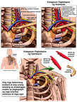 Pagtistis ng Thoracic Outlet Syndrome