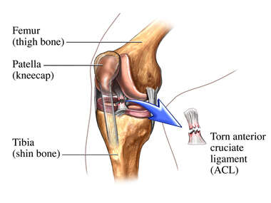 Surgical Removal of the Torn ACL