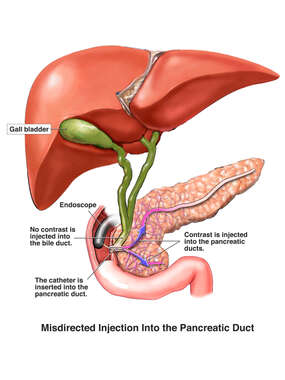 Improper Injection of Contrast Dye into Pancreatic Ducts vs Common Bile Duct