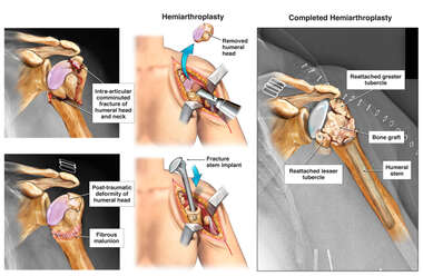 Left Shoulder Fracture and Subsequent Malunion with Eventual Shoulder Replacement Procedure
