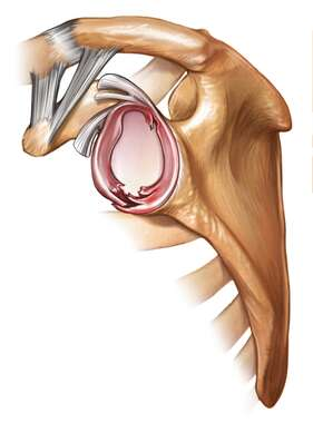 Glenoid Labrum Injury - lateral view