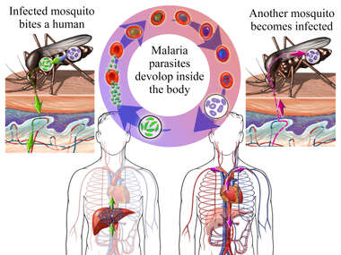 Malaria - Spread of Infection by Mosquitoes
