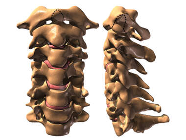 The Cervical Spine: Anterior and Lateral Views