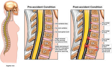 Progression of Cervical Condition