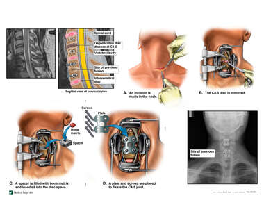 Cervical Disc Disease with Surgical Fusion