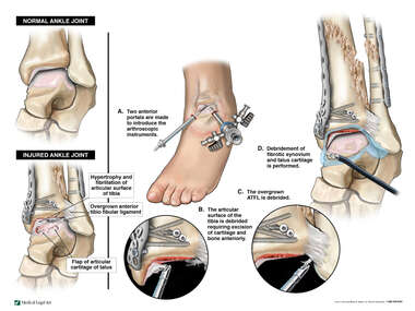 Continued Deterioration of the Left Ankle with Arthroscopic Repairs