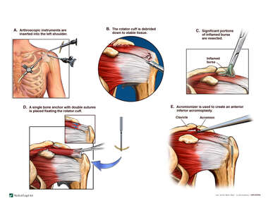 Arthroscopic Surgical Debridement of the Rotator Cuff
