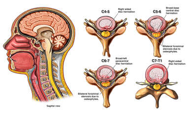 Multilevel Cervical Herniations