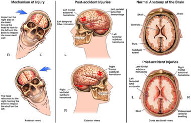 Post-accident Coup Contra-Coup Brain Injuries - Side to Side
