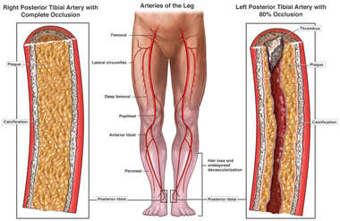 Blood Vessel Blockage of the Lower Legs