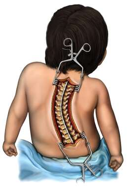 Surgical Exposure of Scoliosis