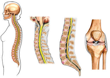 Female Figure and Spine with Post-accident Injuries to the Neck, Back and Knee