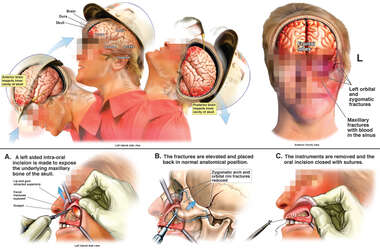 General Mechanism of Brain Injury with Surgical Reduction of Facial Fractures