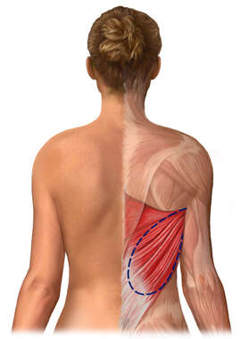 Latissimus Dorsi Muscle Flap Graft Harvest: Breast Reconstruction