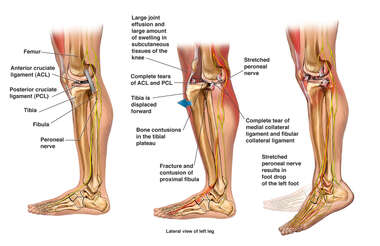 Left Knee Dislocation and Nerve Injury with Resulting Foot Drop
