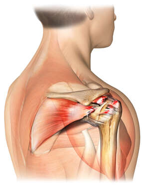 Posterolateral Shoulder Rotator Cuff Tear