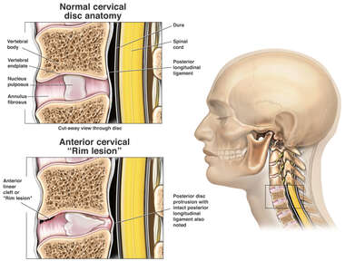 Whiplash Injury  - Anterior Cervical Rim Lesion