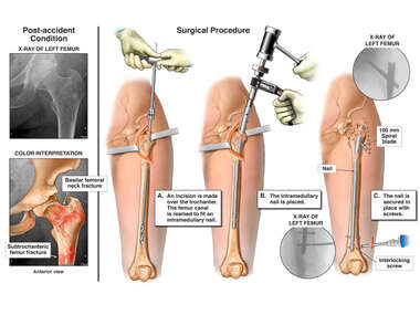 Left Femur Fracture with Surgical Fixation