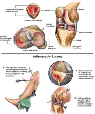 Right Knee Injuries and Surgical Repairs
