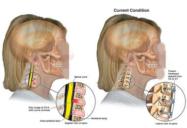 Cervical Disc Injuries with Surgical Fusion