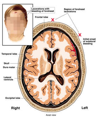 Brain Injury - Subdural Hematoma