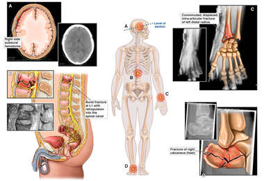 Male Figure with Fractures and X-Ray Films of Injuries to the Brain, Spine, Wrist and Foot