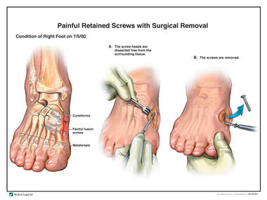 Painful Retained Screws with Surgical Removal