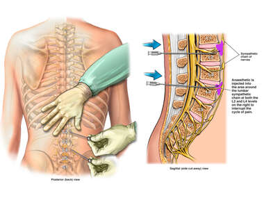 Lumbar Sympathetic Nerve Block Injections