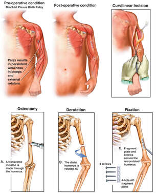 Left Arm Deformities with Additional Attempts at Surgical Repair
