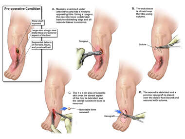 Irrigation and Debridement of Right Lower Leg and Foot Wounds