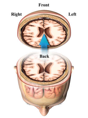 Axial Brain Study-Slice Orientation