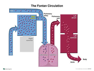 The Fontan Circulation Diagram