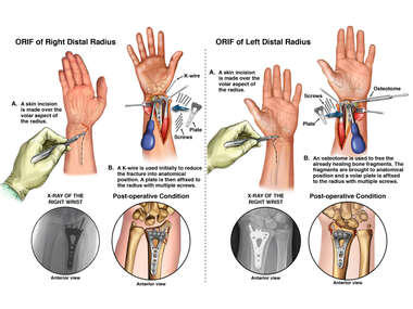 Bilateral Open Reduction and Internal Fixation of Right and Left Radius